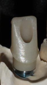 Individueller Implantataufbau Zirkonoxid