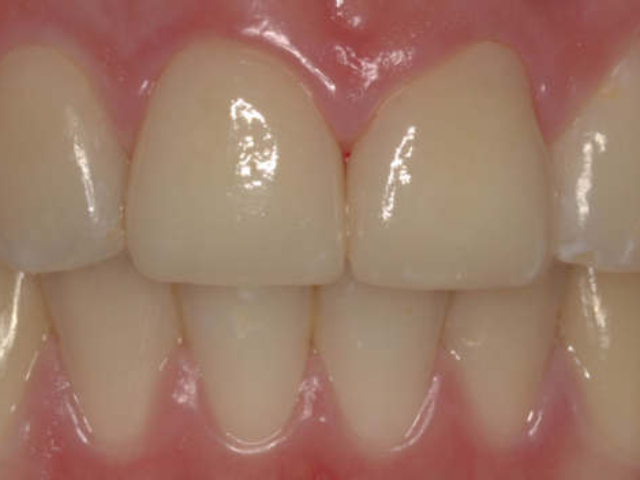 Fertige Frontzahnrestauration mit Veneers auf den oberen mittleren Schneidezähnen